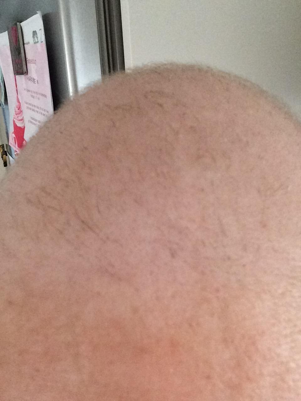 Håret gror