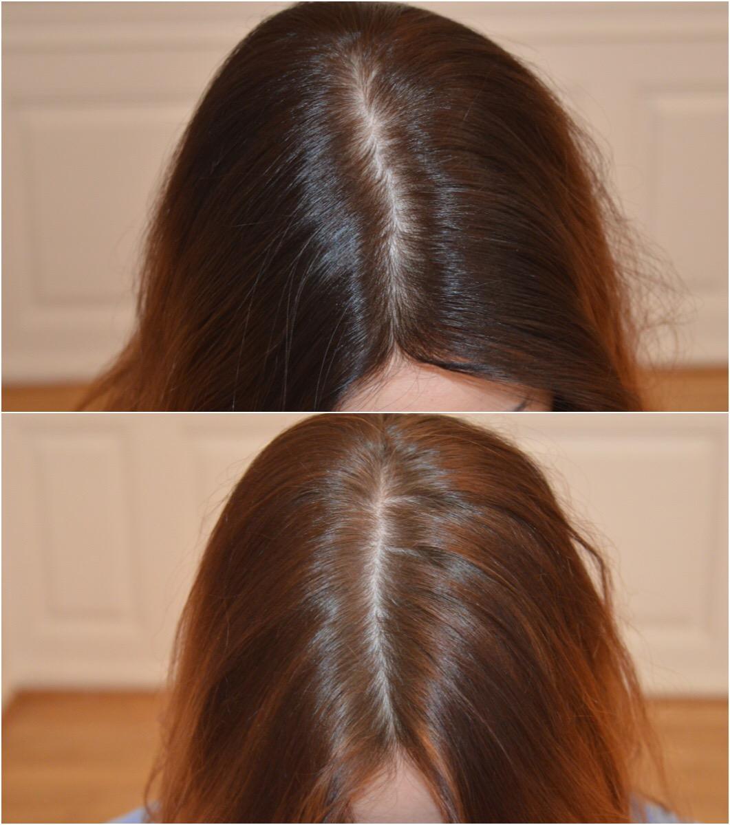 hårklinikken hårtab behandlingsforløb