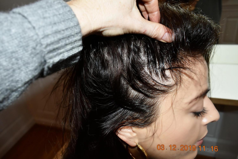 hårklinikken Pcos hårtab