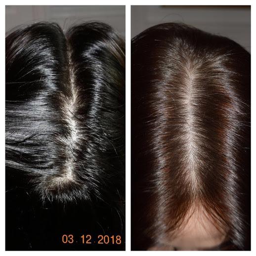 hårklinikken hårtab