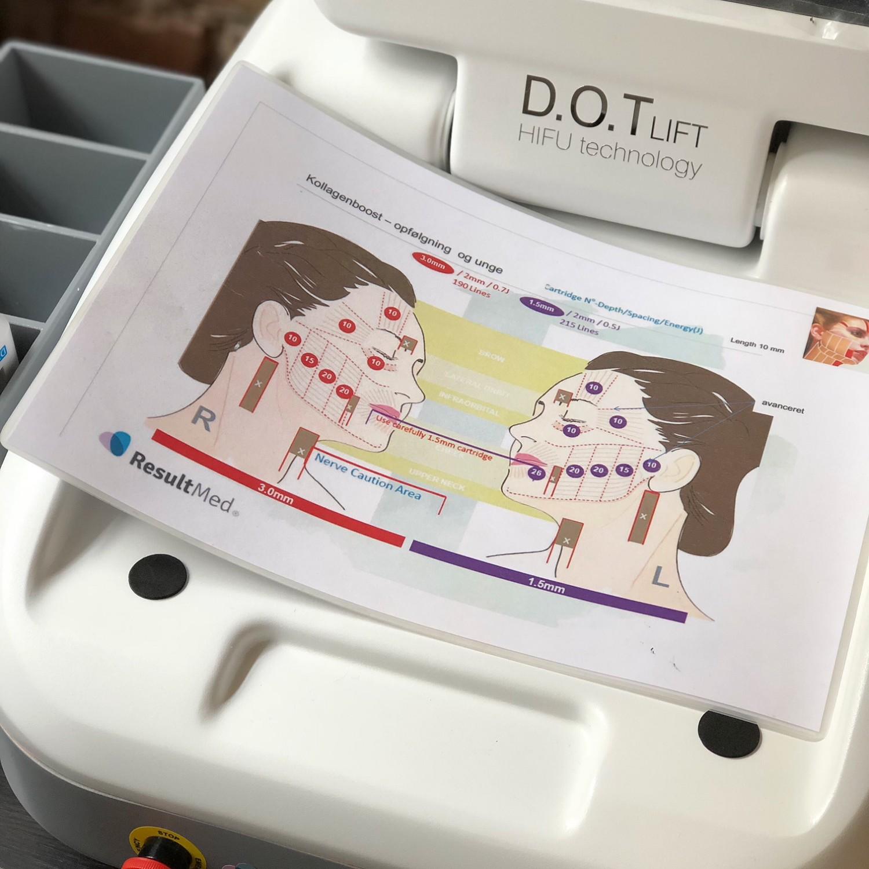 hifi dot lift beauty akademiet resultat ultralyd ansigtsløft rynkereduktion resultater urbannotes.dk