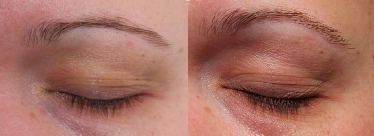 Før Revitalash til venstre, efter tre månedes brug af Revitalash til højre
