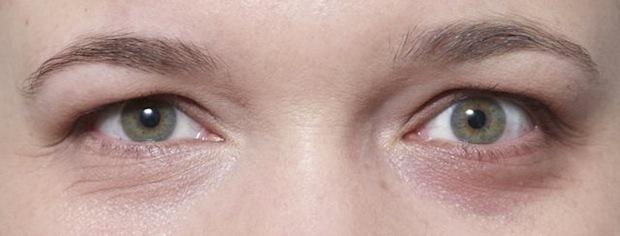 Sorte rande dækket af concealer på det ene øje