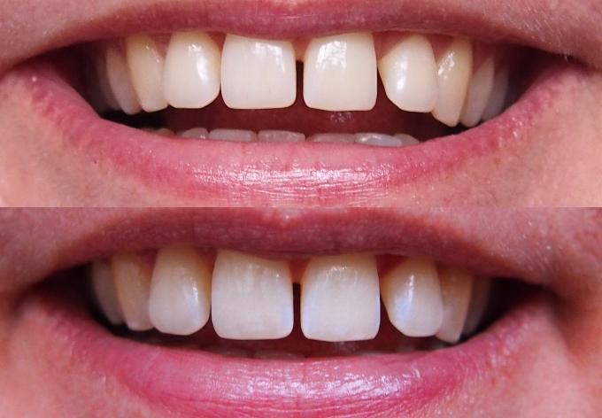 Swiss Whitening tænder før og efter