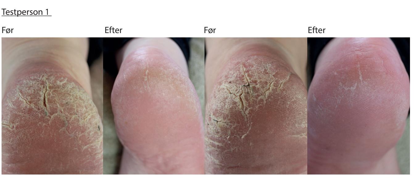 Hård hud på hælen