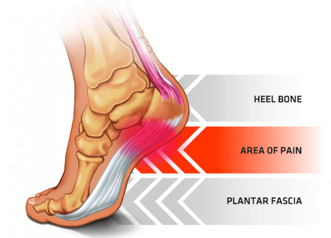 plantar-fasciitis-foot-anatomy