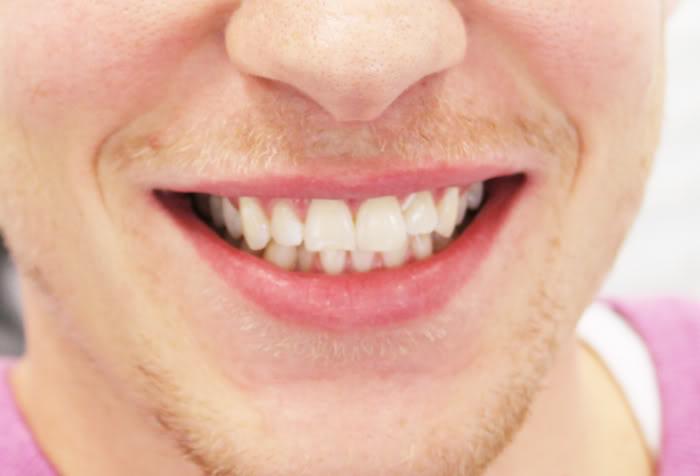 Nyt smil til manden