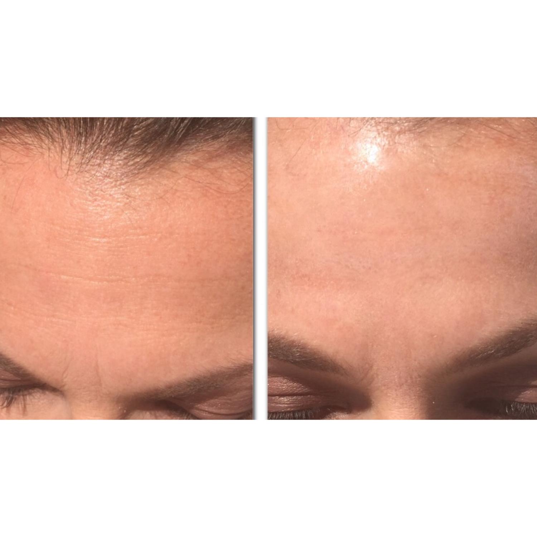 Tip til smukkere hud & farvel til de der pat rynker