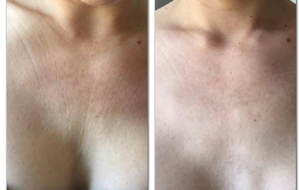 rynker på brystet