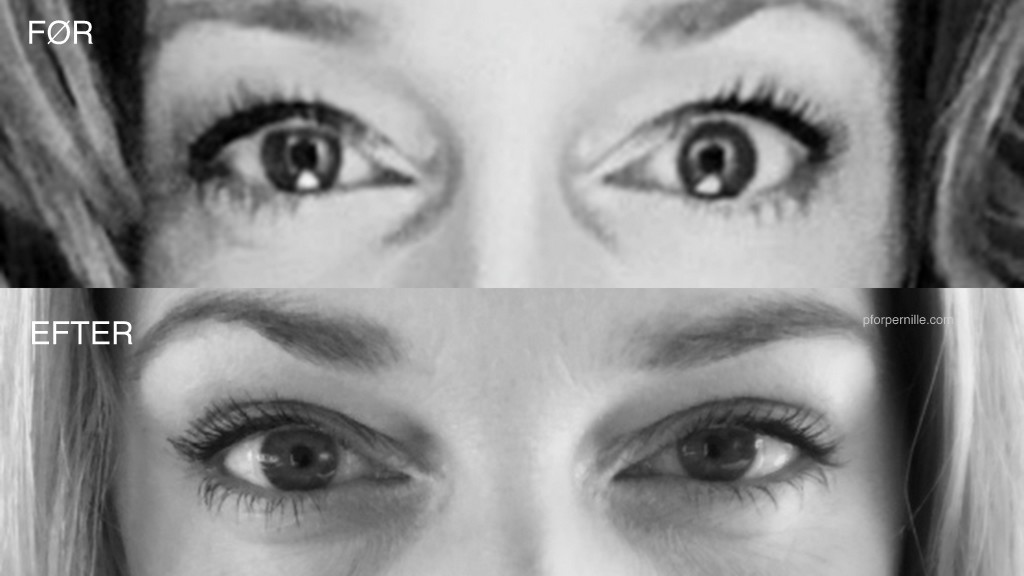 Tunge øjenlåg
