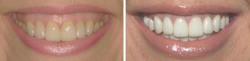 sarasota-cosmetic-dentist-gummy-smiles-case1