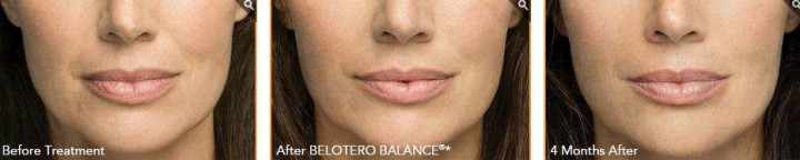 Belotero-Before-and-After