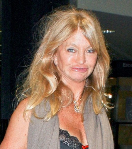 Goldie-Hawn-plastic-surgery-disaster