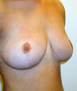 brystreduktion3-efter-257x300