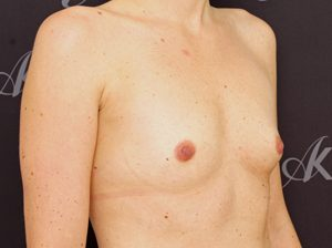 breast1-300x224