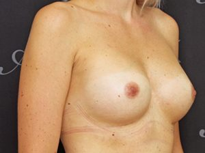 breast2-300x224