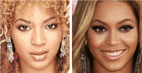 beyonce-nose-job-before-and-after-pictures