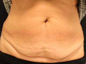 Miniabdominalplastik-liposuction1-300x225