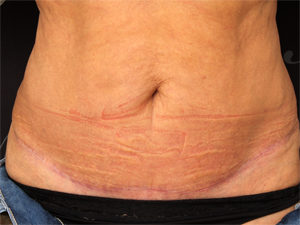 Miniabdominalplastik-liposuction2-300x225