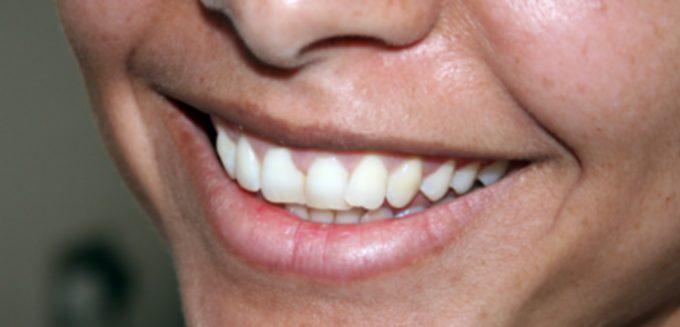 Danmarks Mentale Sundhedsdag mental sundhed smil FreeImages