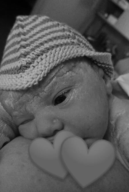 Fødsel OUH fødselsberetning