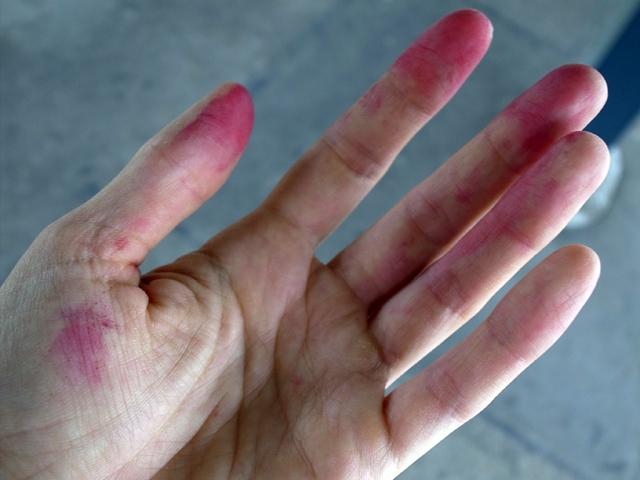 brombærrødefingre