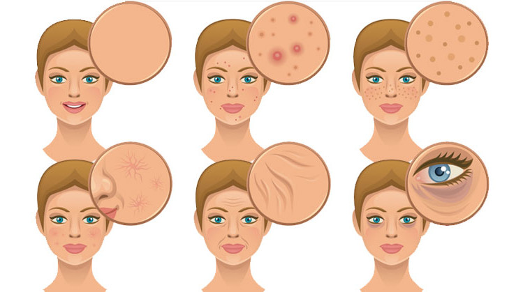 face-complexion-ss-759x419